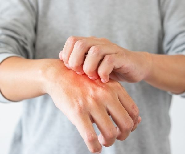 Dermatitis Madrid